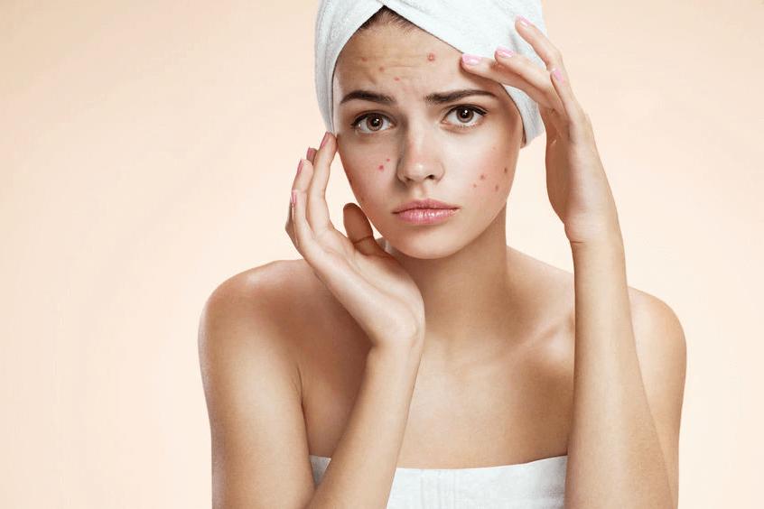 「皮膚科で治せる肌荒れ」と「そうでない肌荒れ」、見極めのポイント