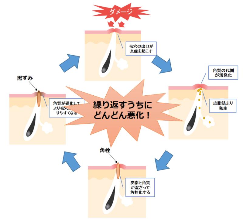 毛穴の角栓が詰まってしまうメカニズム