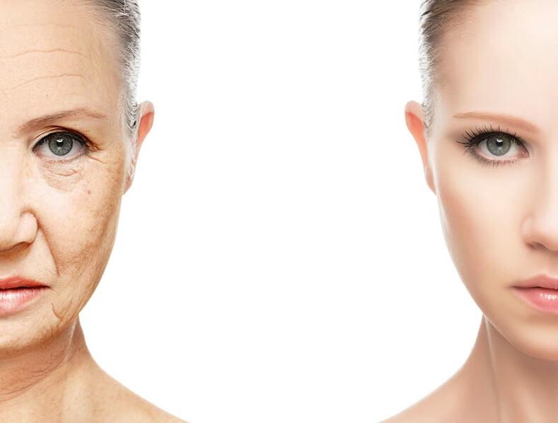 「シワ改善化粧品」は使った方がいいのか?美白化粧品との類似性といろいろな考察
