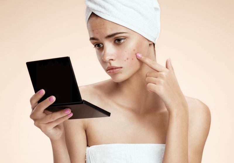 ニキビ肌荒れに「ニキビ用化粧品」は使うべきか?